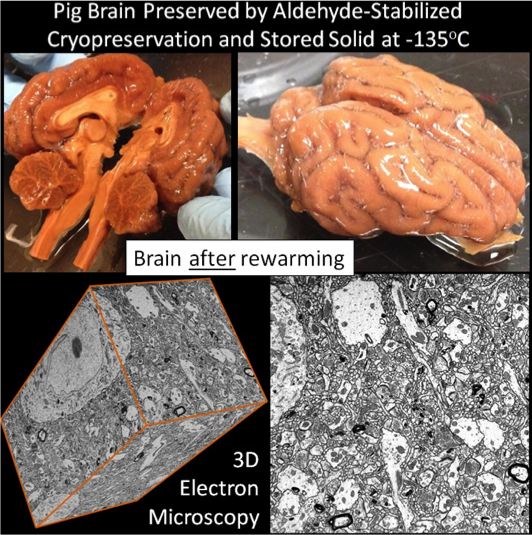 Implications Of The Bpf Large Mammal Brain Preservation Prize The